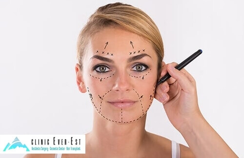 Non-Surgical Face Lift Aesthetics