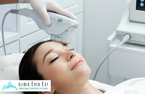 Non-Surgical Face Lift with Focused Ultrasound