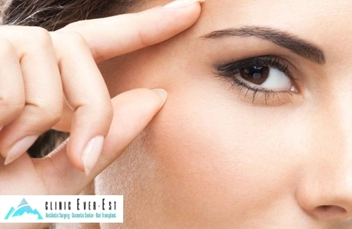 Eyelid Aesthetic Surgery