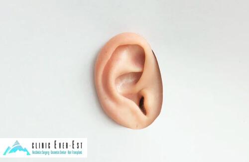 İstanbul Kulak Estetiği Ameliyatı