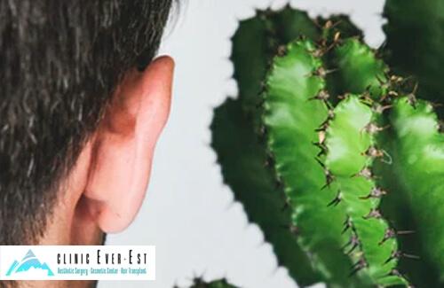 Kepçe Kulak Sorununa Kalıcı Çözüm