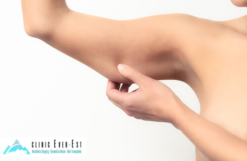 Laser Liposuction Arm Aesthetics