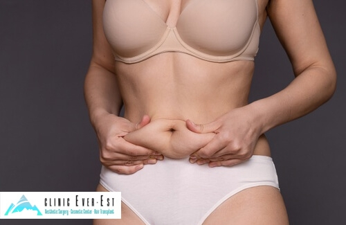 Lose Weight with Liposuction Surgery