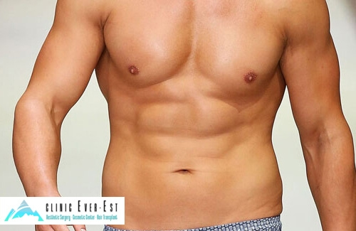 Liposuction Gynecomastia