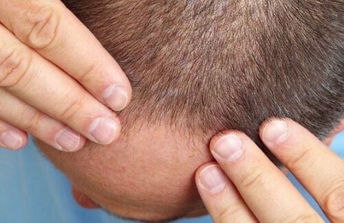 10 wrongs known about hair transplantation