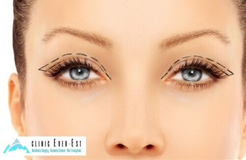 Upper Eyelid Aesthetic Surgery
