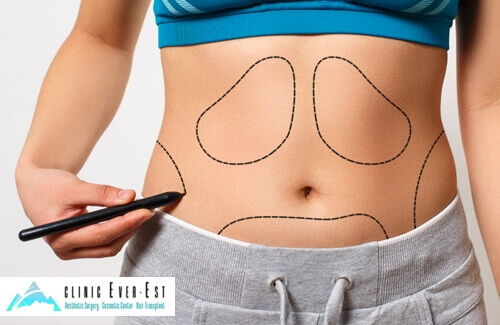 Vaser Liposuction Method